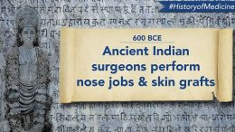 surgery-medical-ancient-hindu-science